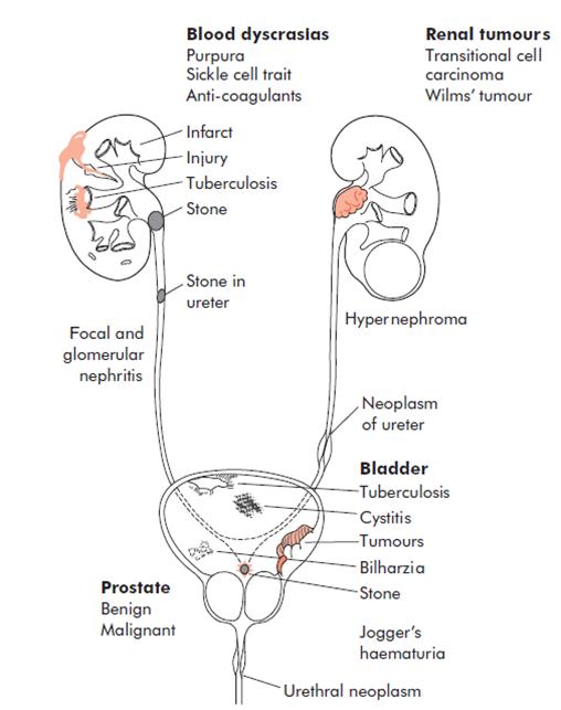 Zinnat prostatitis urethritis
